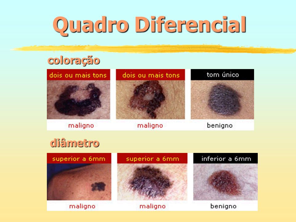 Quadro Diferencial coloração diâmetro