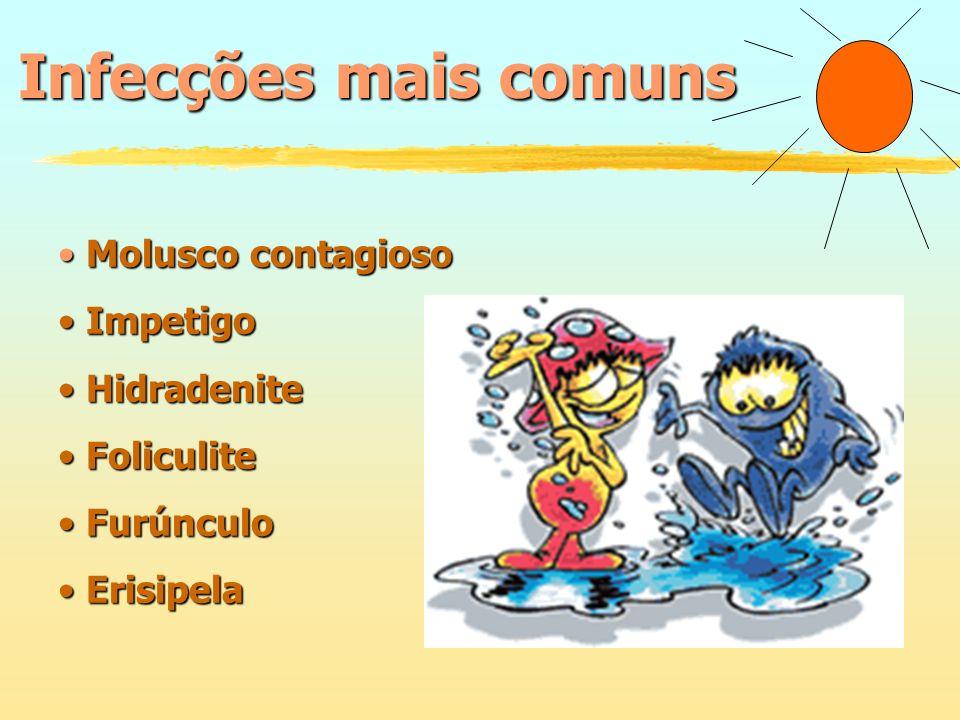 Infecções mais comuns Molusco contagioso Impetigo Hidradenite
