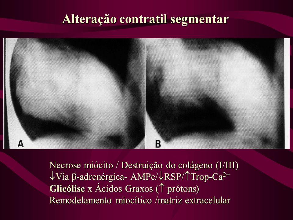 Alteração contratil segmentar