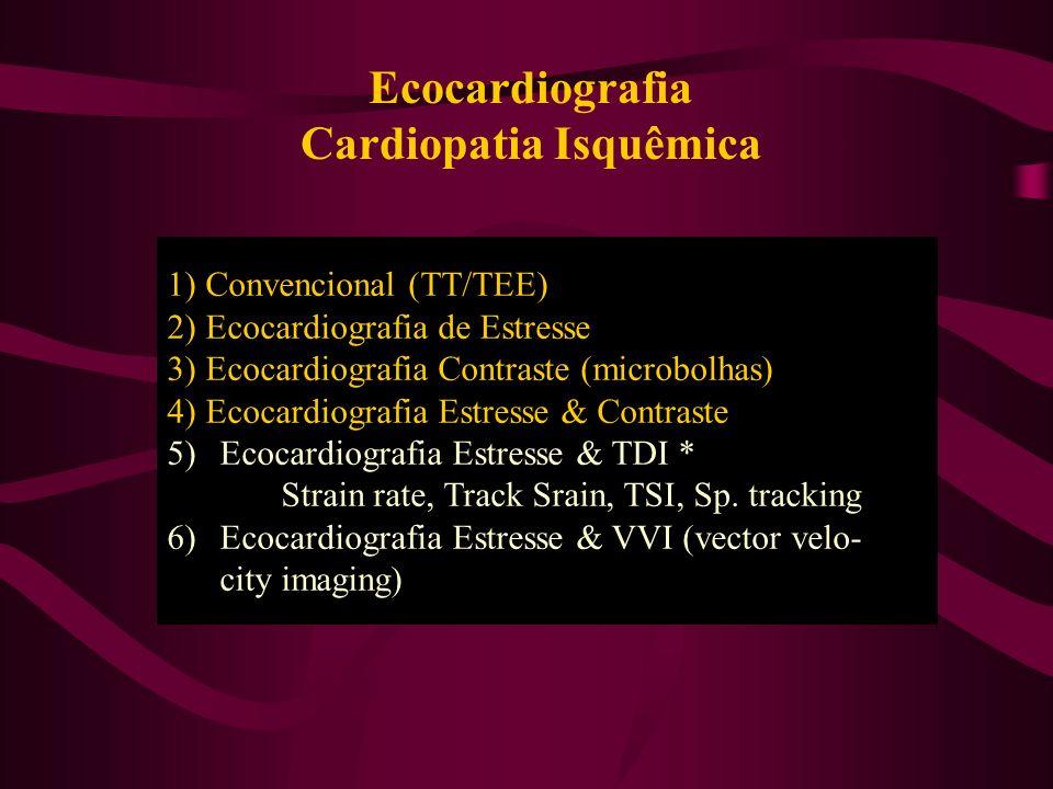 Ecocardiografia Cardiopatia Isquêmica