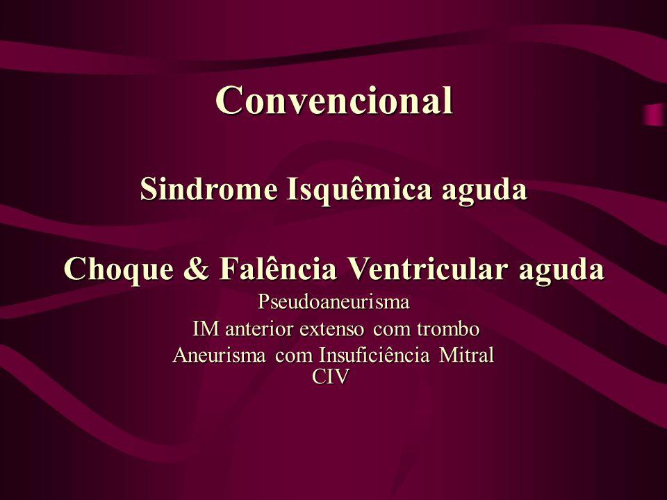 Sindrome Isquêmica aguda
