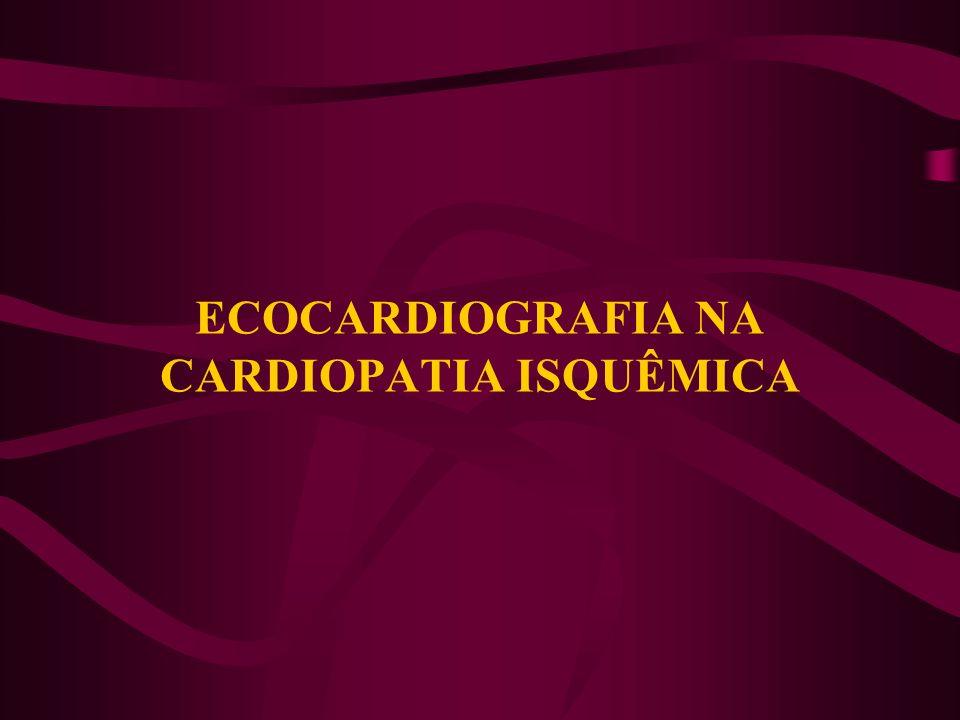 ECOCARDIOGRAFIA NA CARDIOPATIA ISQUÊMICA