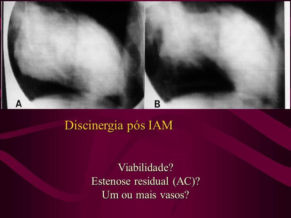 Estenose residual (AC)