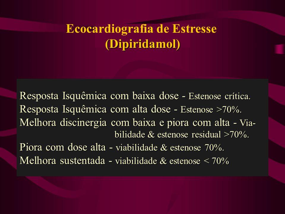 Ecocardiografia de Estresse