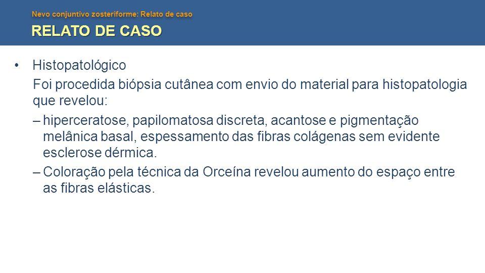 RELATO DE CASO Histopatológico