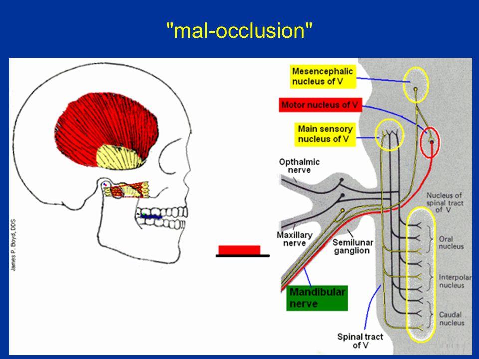 mal-occlusion