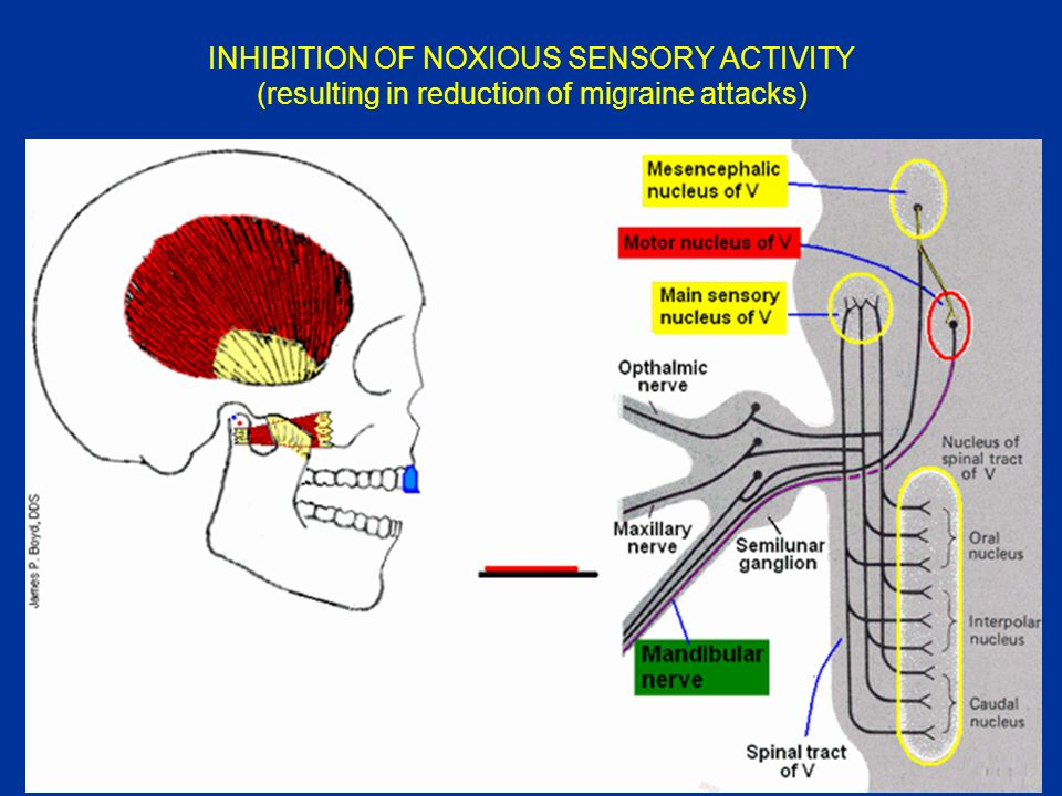 INHIBITION OF NOXIOUS SENSORY ACTIVITY (resulting in reduction of migraine attacks)