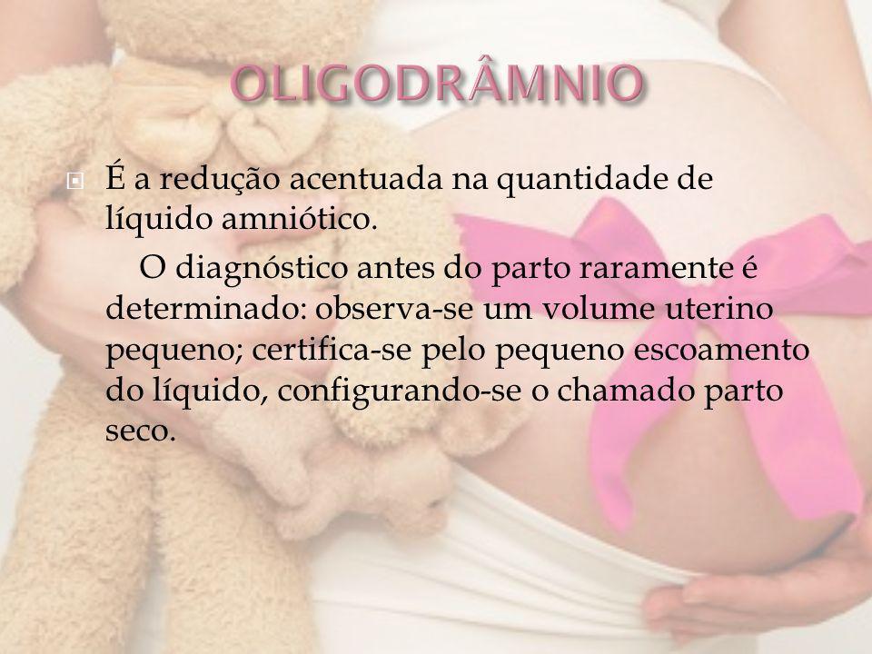 OLIGODRÂMNIO É a redução acentuada na quantidade de líquido amniótico.