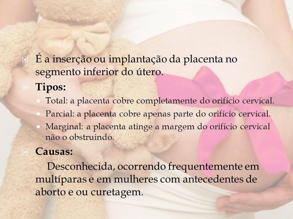 É a inserção ou implantação da placenta no segmento inferior do útero.