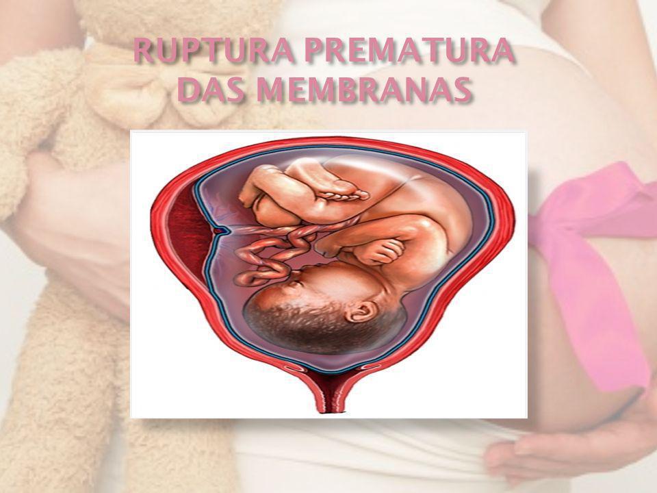 RUPTURA PREMATURA DAS MEMBRANAS