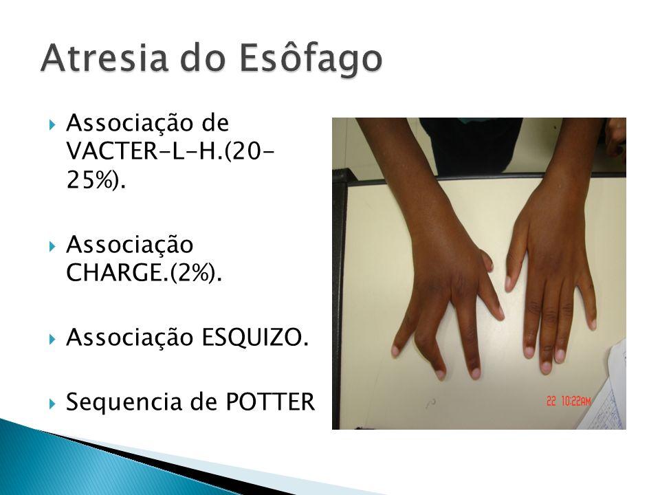 Atresia do Esôfago Associação de VACTER-L-H.(20- 25%).