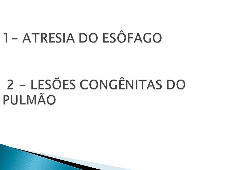 1- ATRESIA DO ESÔFAGO 2 - LESÕES CONGÊNITAS DO PULMÃO