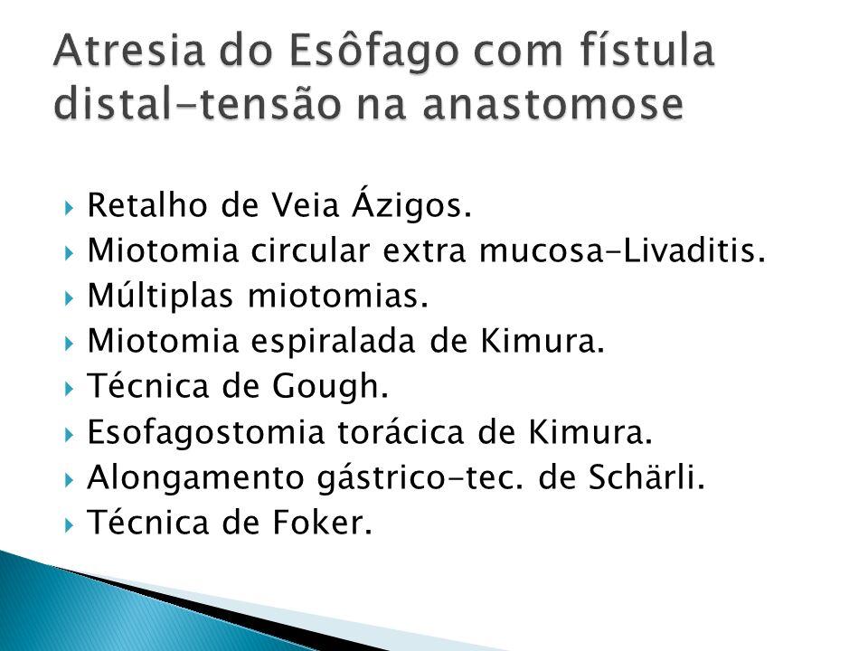 Atresia do Esôfago com fístula distal-tensão na anastomose