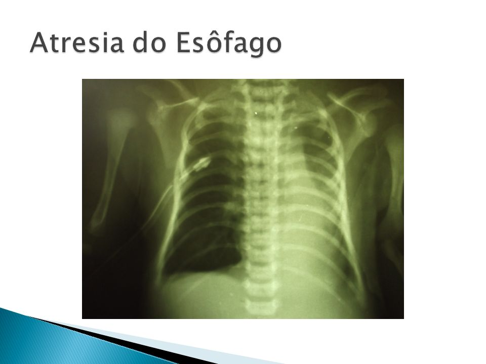 Atresia do Esôfago