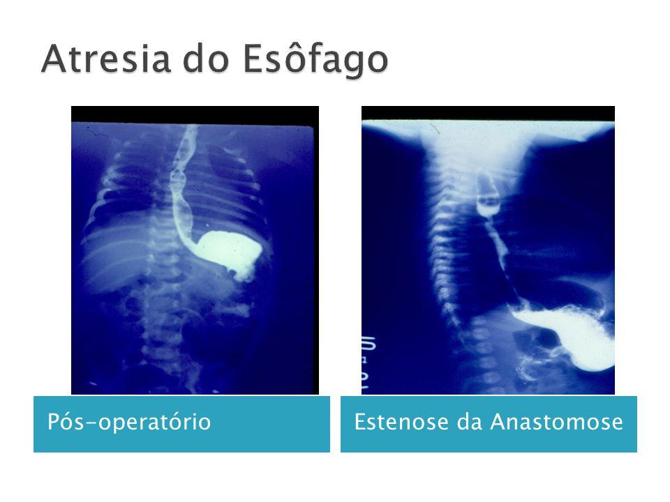 Atresia do Esôfago Pós-operatório Estenose da Anastomose