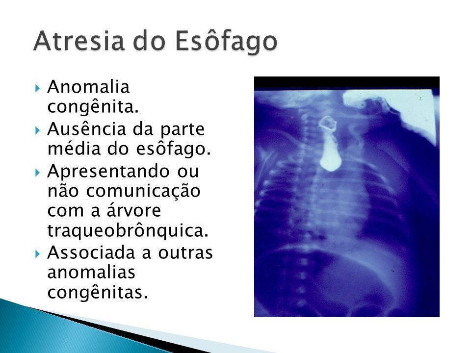 Atresia do Esôfago Anomalia congênita.