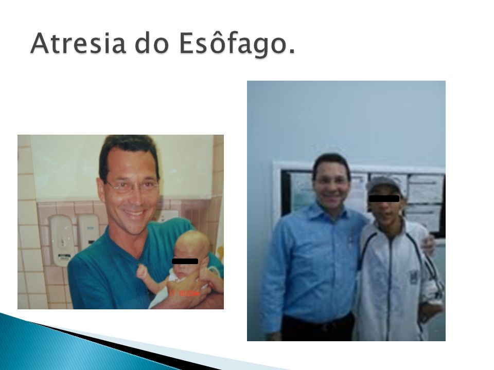 Atresia do Esôfago.