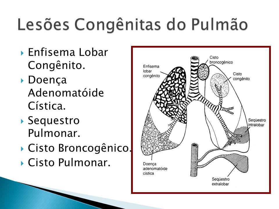 Lesões Congênitas do Pulmão