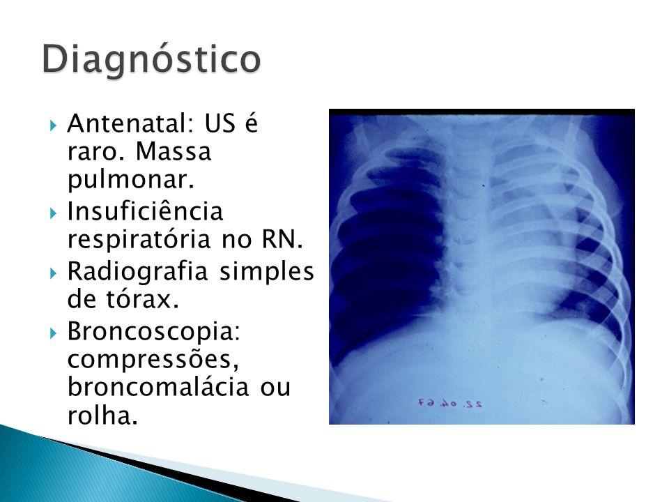 Diagnóstico Antenatal: US é raro. Massa pulmonar.