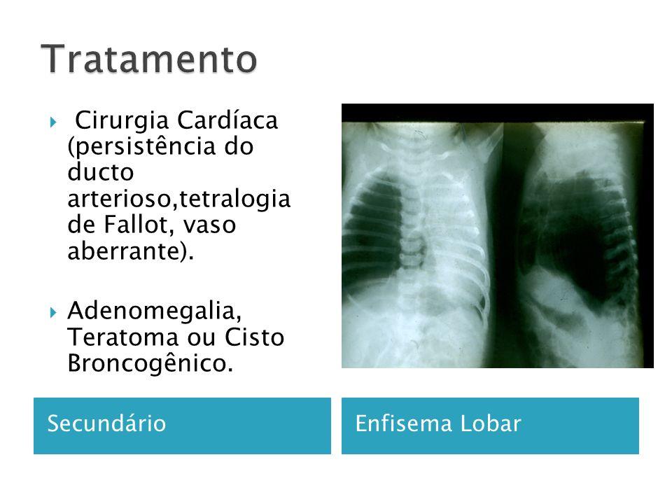 Tratamento Cirurgia Cardíaca (persistência do ducto arterioso,tetralogia de Fallot, vaso aberrante).