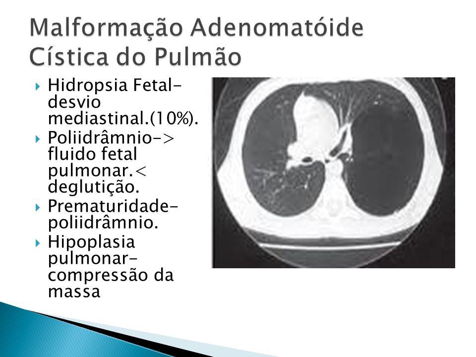 Malformação Adenomatóide Cística do Pulmão