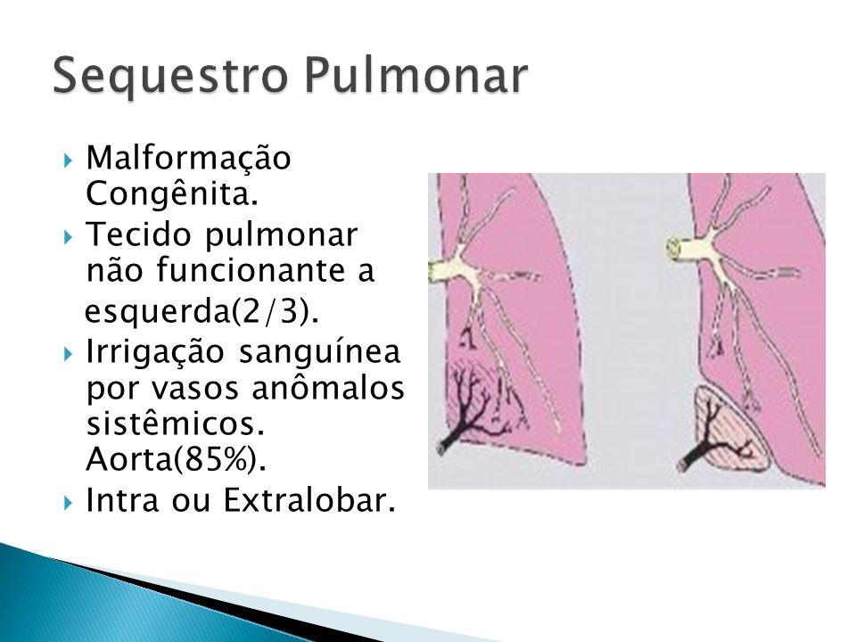 Sequestro Pulmonar Malformação Congênita.