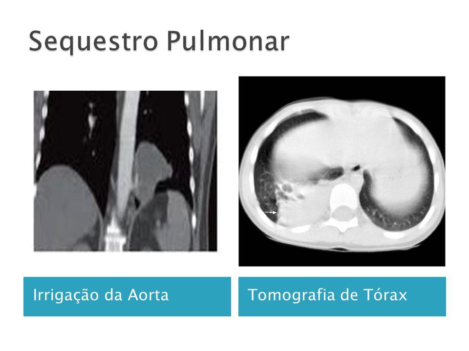 Sequestro Pulmonar Irrigação da Aorta Tomografia de Tórax