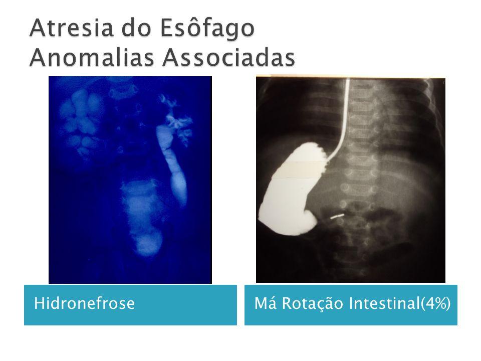 Atresia do Esôfago Anomalias Associadas