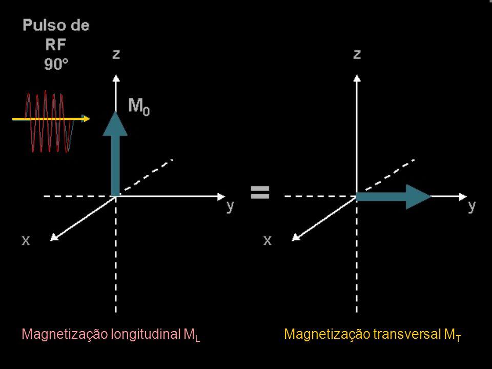 Magnetização longitudinal ML