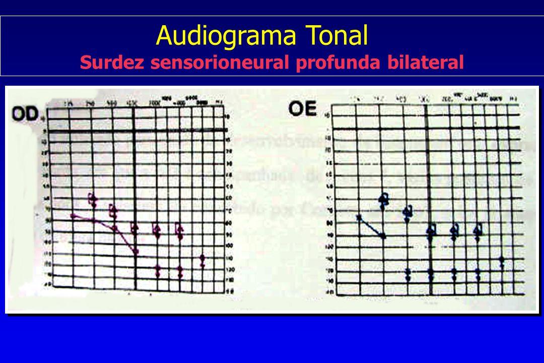 Surdez sensorioneural profunda bilateral