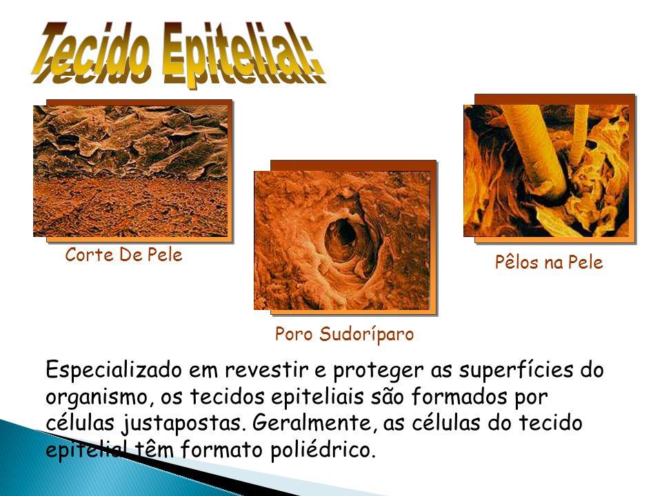 Tecido Epitelial: Pêlos na Pele. Corte De Pele. Poro Sudoríparo.