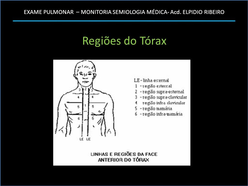 Regiões do Tórax