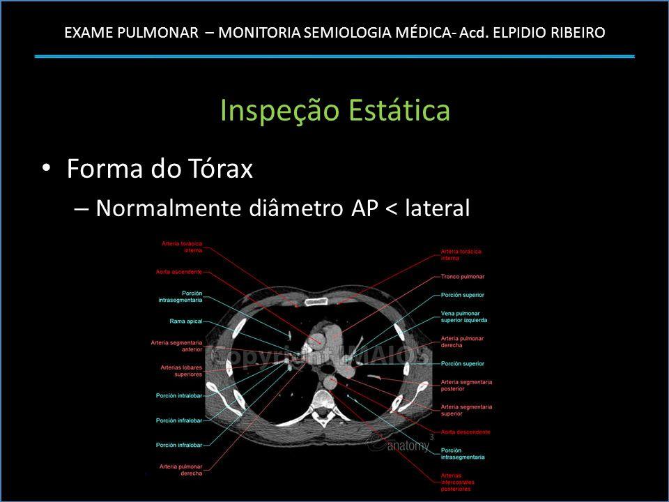 Inspeção Estática Forma do Tórax Normalmente diâmetro AP < lateral