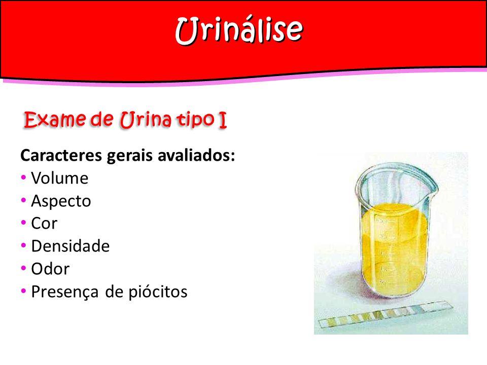 Urinálise Exame de Urina tipo I Caracteres gerais avaliados: Volume