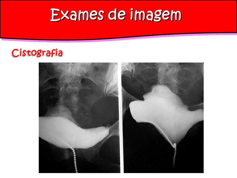 Exames de imagem Cistografia