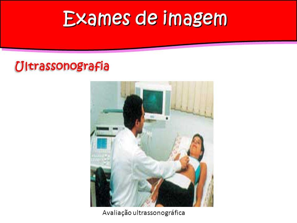 Exames de imagem Ultrassonografia Avaliação ultrassonográfica