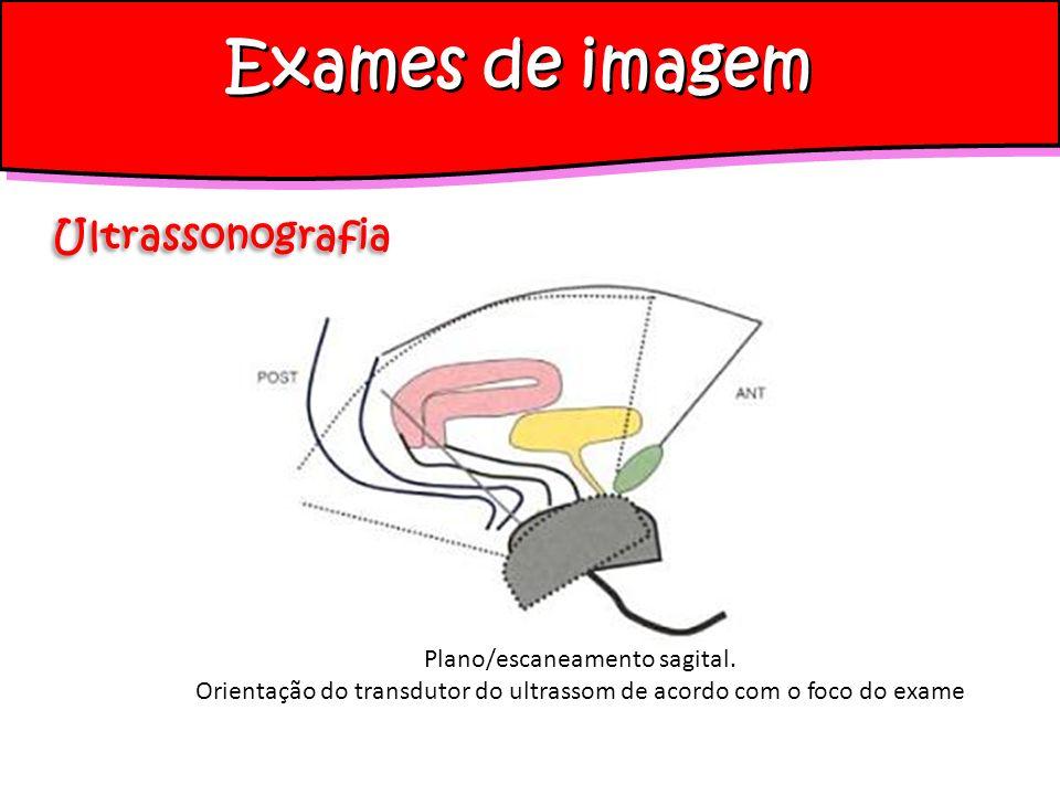 Exames de imagem Ultrassonografia Plano/escaneamento sagital.