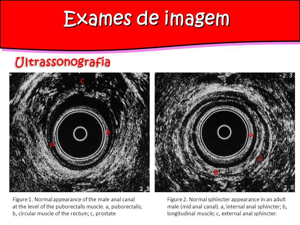 Exames de imagem Ultrassonografia C B A A C B