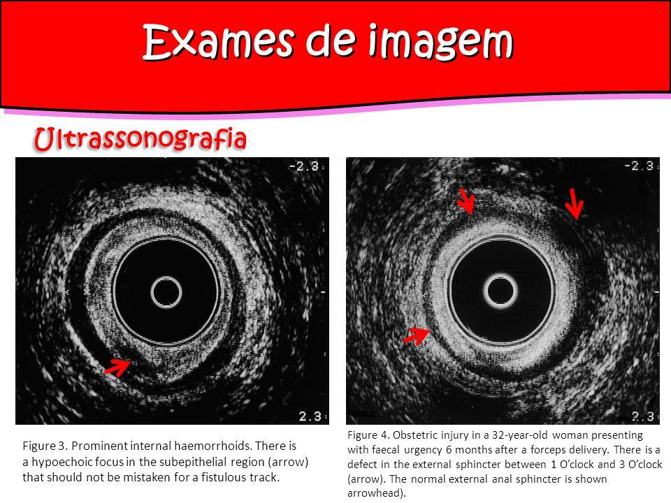 Exames de imagem Ultrassonografia