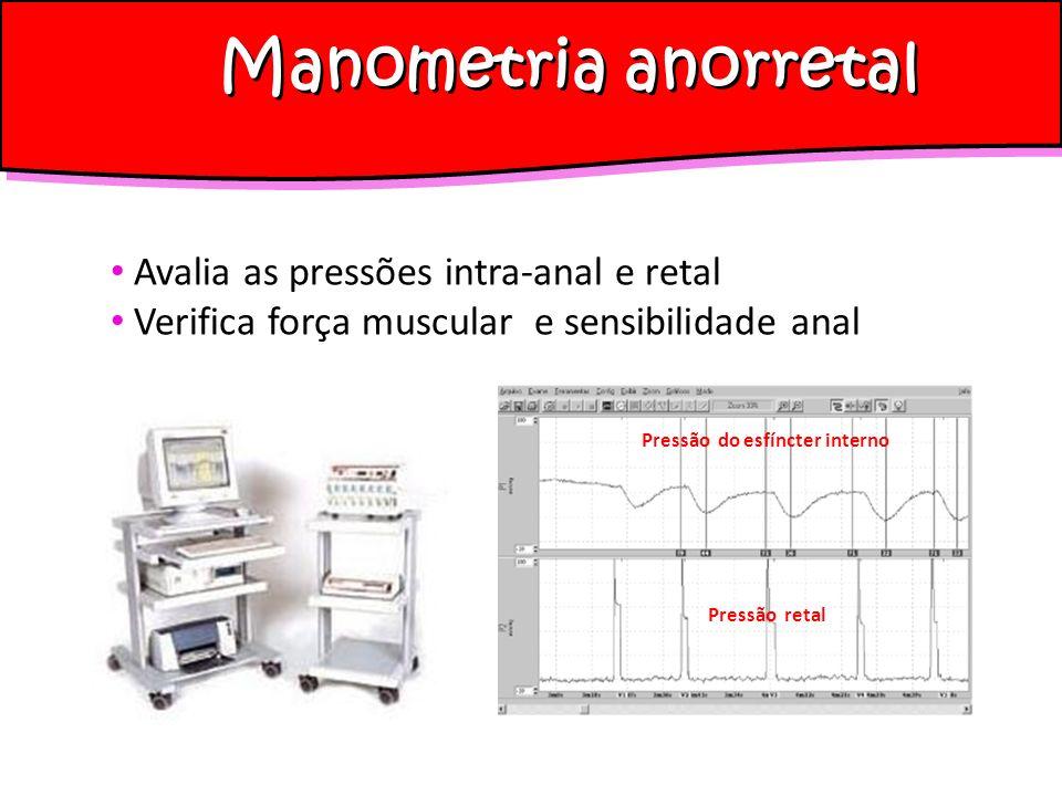 Manometria anorretal Avalia as pressões intra-anal e retal