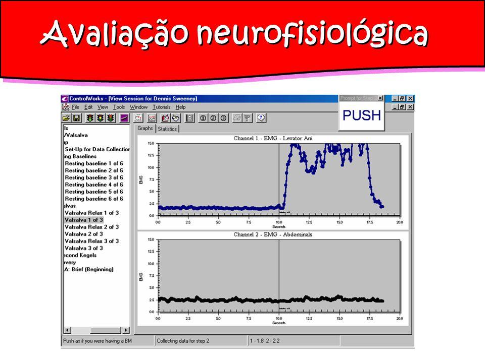 Avaliação neurofisiológica