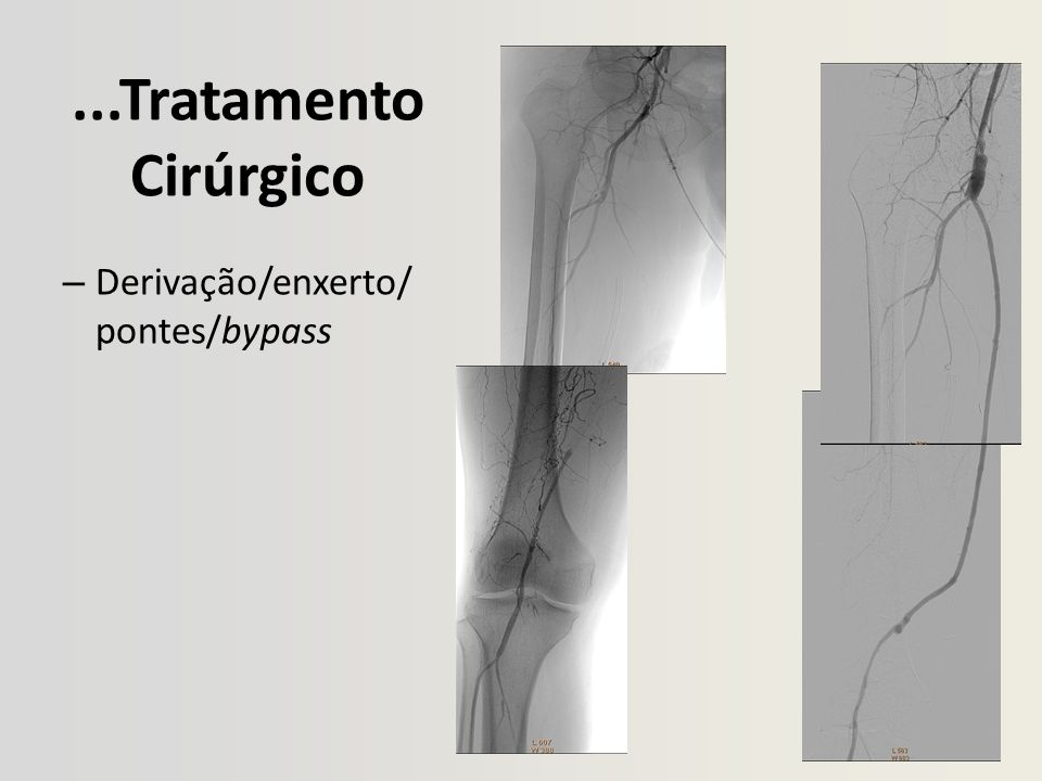 ...Tratamento Cirúrgico Derivação/enxerto/pontes/bypass