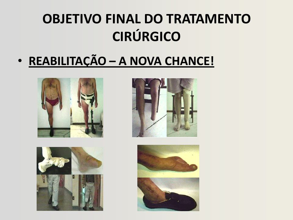 OBJETIVO FINAL DO TRATAMENTO CIRÚRGICO
