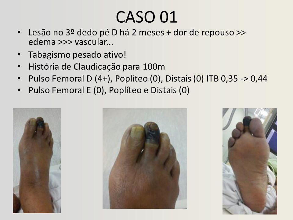 CASO 01 Lesão no 3º dedo pé D há 2 meses + dor de repouso >> edema >>> vascular... Tabagismo pesado ativo!