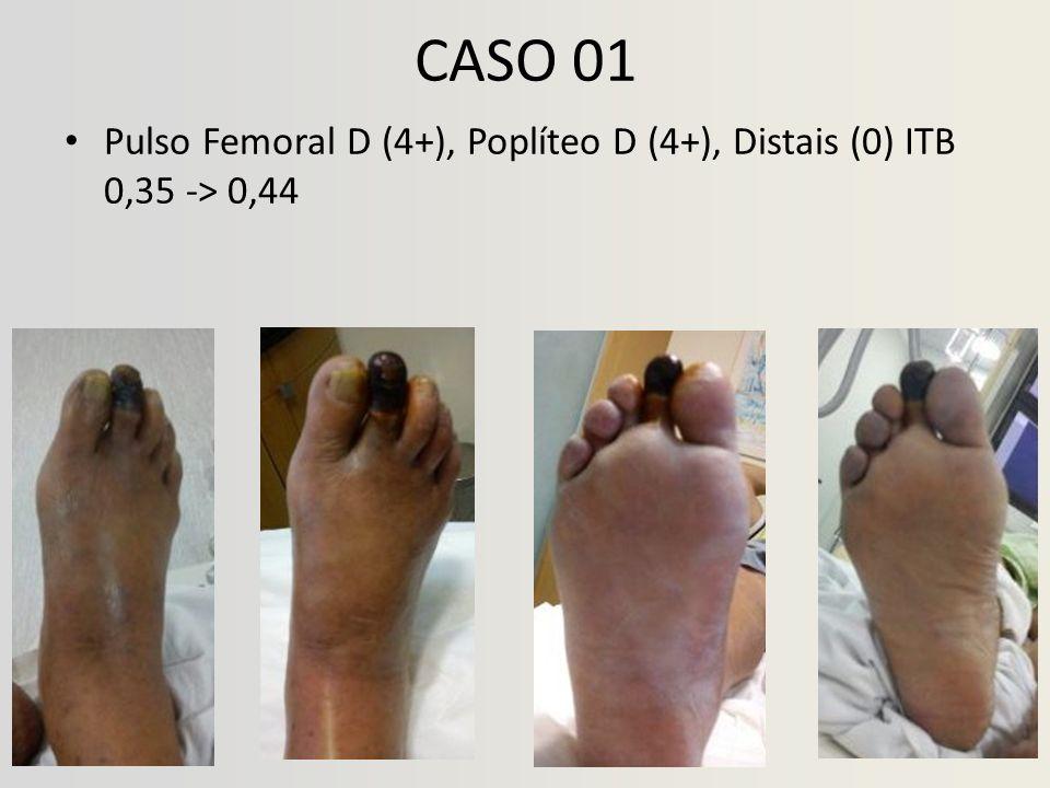 CASO 01 Pulso Femoral D (4+), Poplíteo D (4+), Distais (0) ITB 0,35 -> 0,44