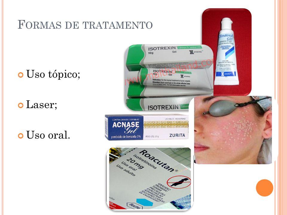 Formas de tratamento Uso tópico; Laser; Uso oral.