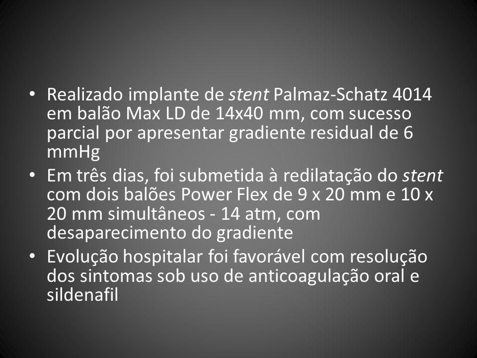 Realizado implante de stent Palmaz-Schatz 4014 em balão Max LD de 14x40 mm, com sucesso parcial por apresentar gradiente residual de 6 mmHg