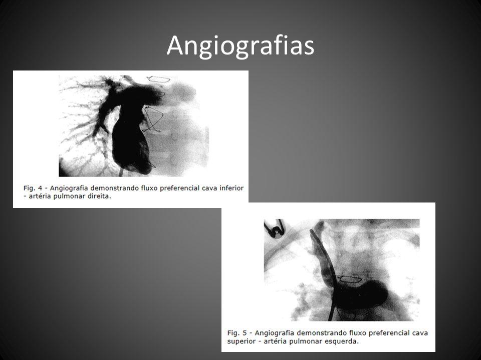 Angiografias