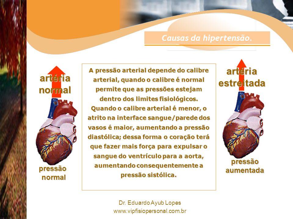artéria estreitada artéria normal