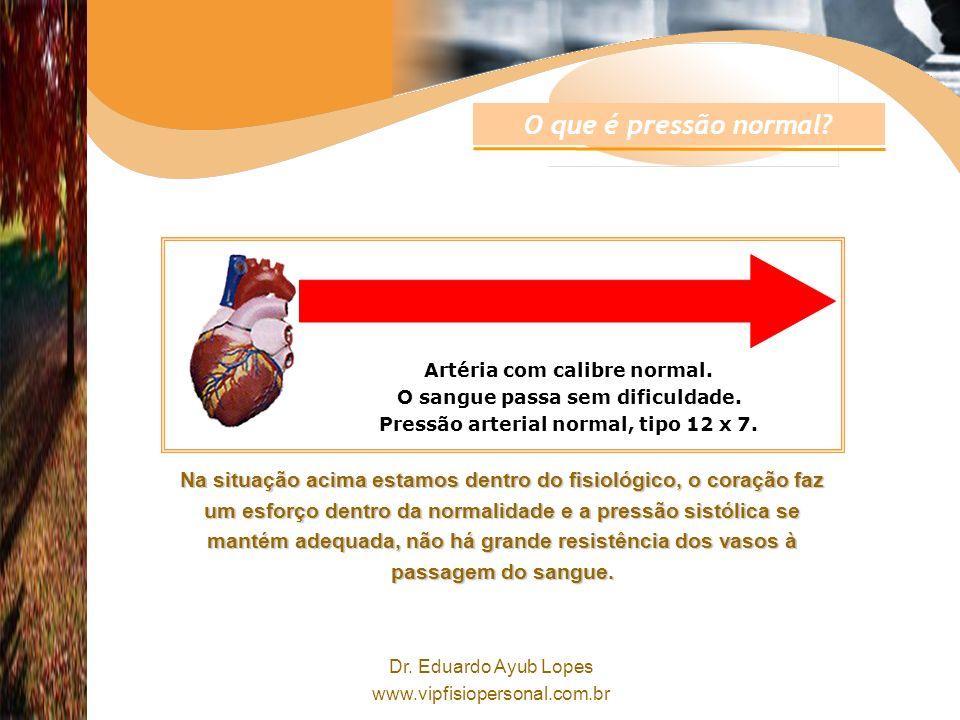 O que é pressão normal Artéria com calibre normal. O sangue passa sem dificuldade. Pressão arterial normal, tipo 12 x 7.